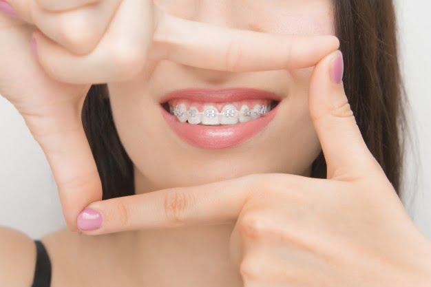 Importance Of Orthodontics